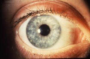 Normal Cornea (Hornhinna)