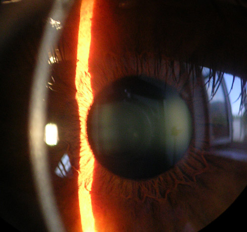 Normal Cornea Spaltlampa