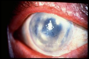 Bild på bullös keratopati