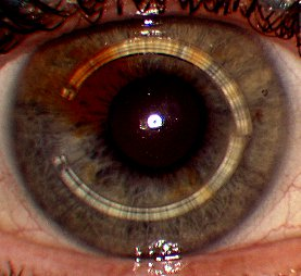 Intrastromal corneal ring segments, INTACS